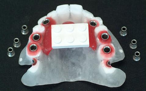 Bohrschablone für Implantate bei Köln