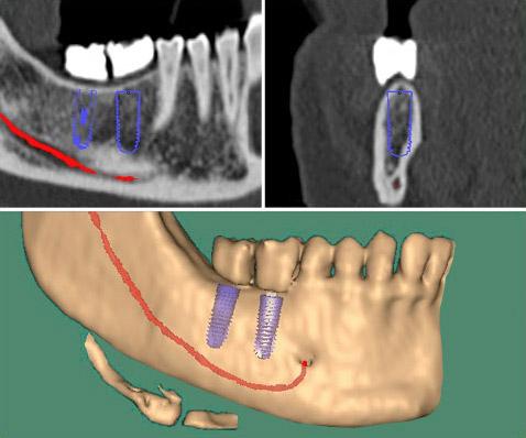 3D-Implantologie bei Köln