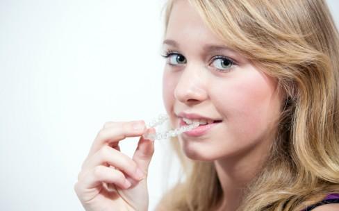 Jugendliche beim Einsetzen der Zahnspange einer Schiene